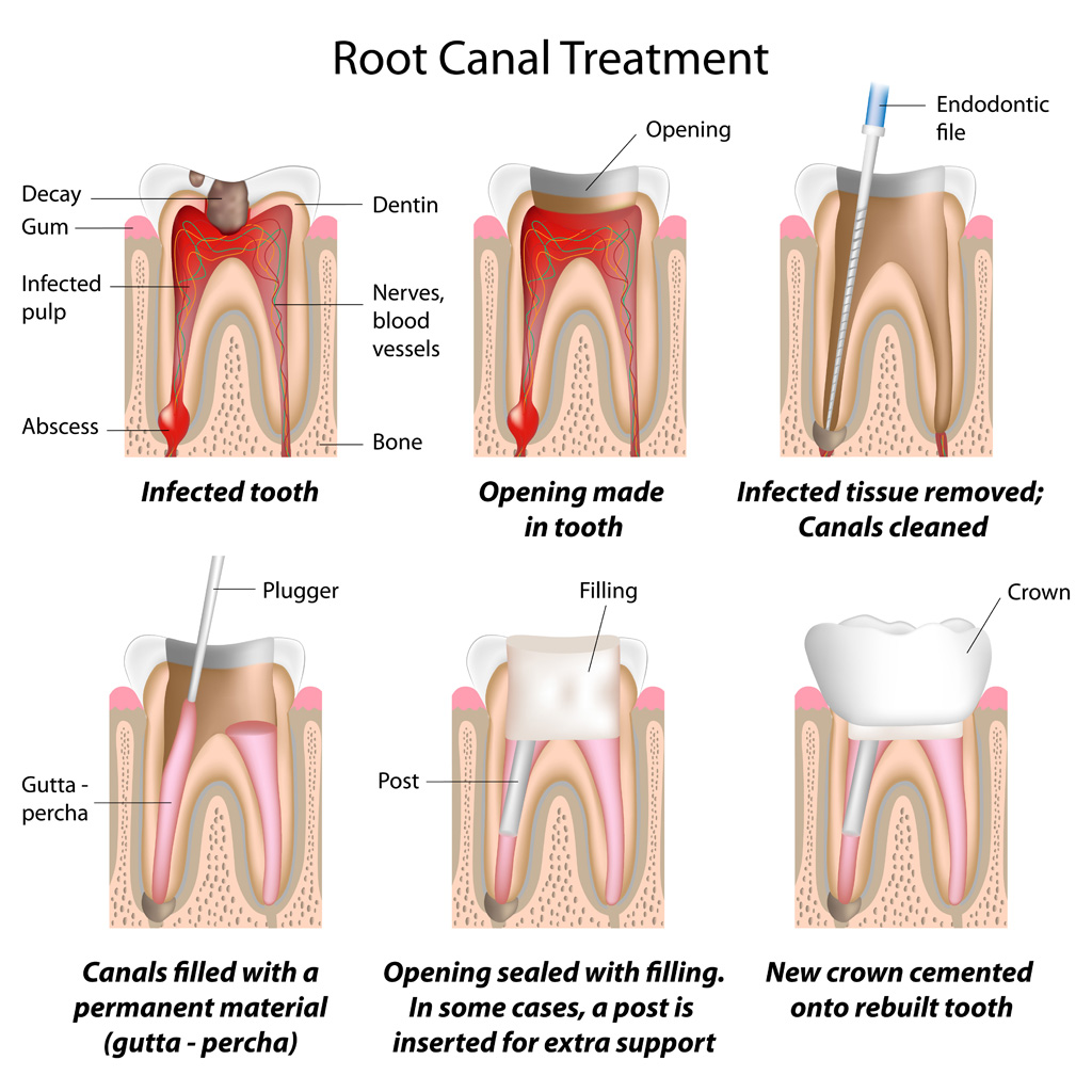 A basic illustration on how root canal treatment is done. Please do contact us for further enquiries.