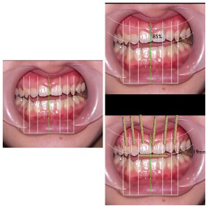 Excessive gingiva display calculated scientifically before treatment