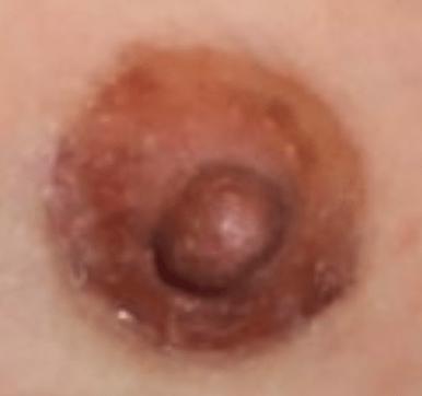 乳暈旁切口疤痕