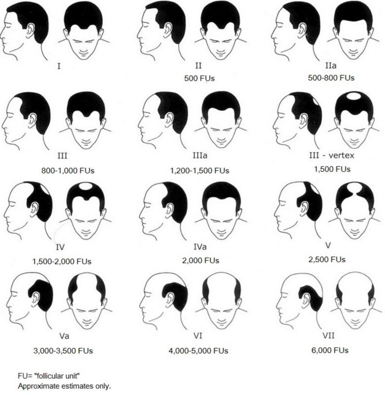 雄性禿落髮分期