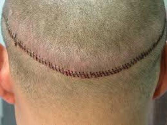 切頭皮FUT縫合