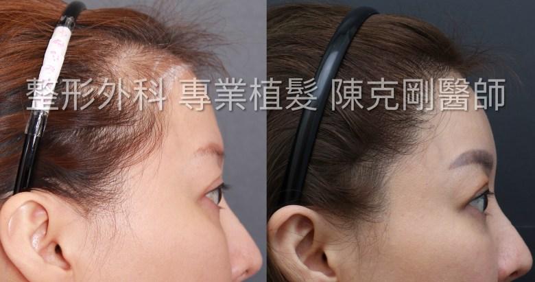 植髮際線女性