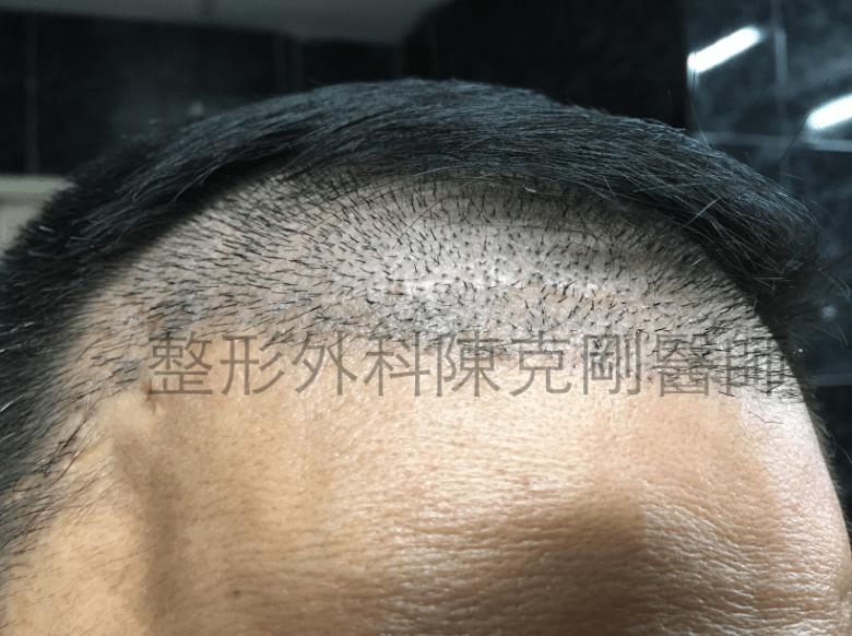 植髮結痂移除.png
