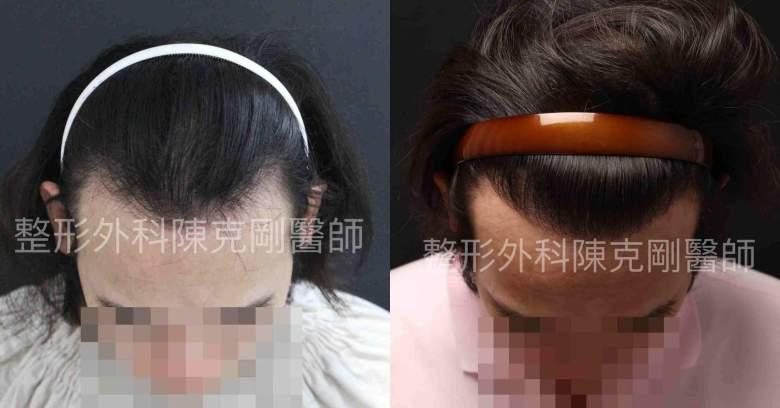 髮線比較-side.jpg