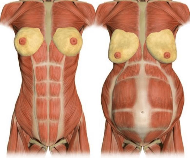 產後腹部鬆弛:腹直肌筋膜鬆弛