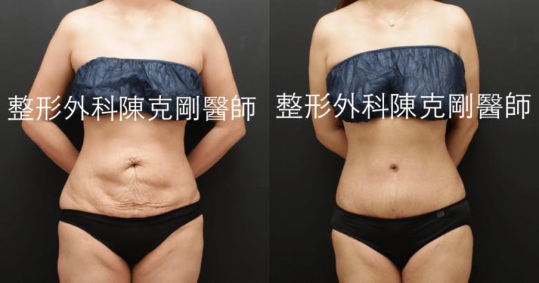 腹部拉皮手術