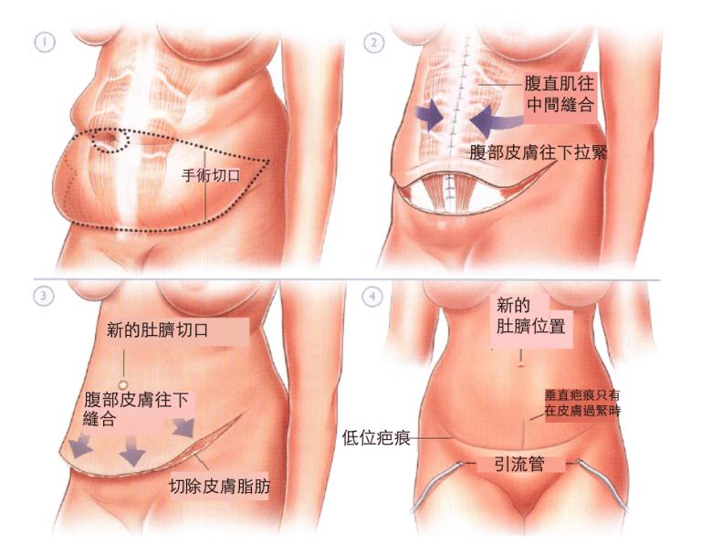 腹部拉皮手術示意圖