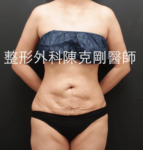 腹部拉皮術前正面