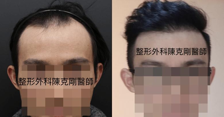 植髮油頭正面比較-side