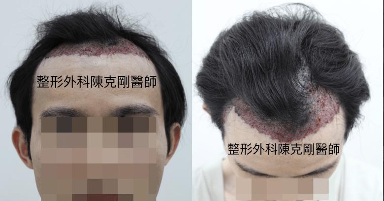 植髮油頭術後正面低頭-side.png