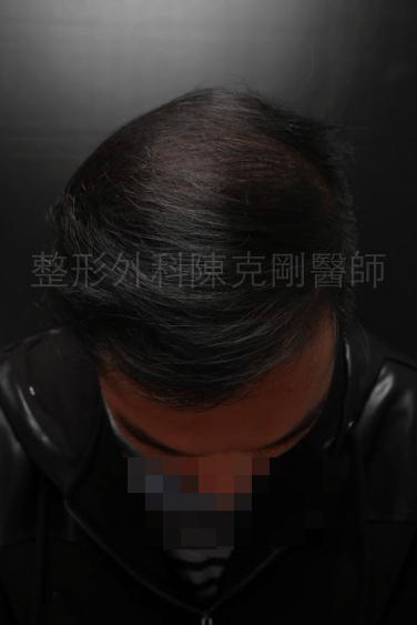 植髮頭頂1500株術後一年半