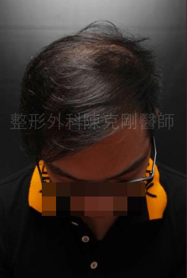 植髮頭頂稀疏1500株一年.png