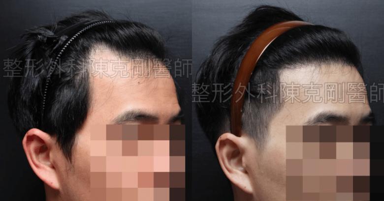 年輕植髮右45度比較.png