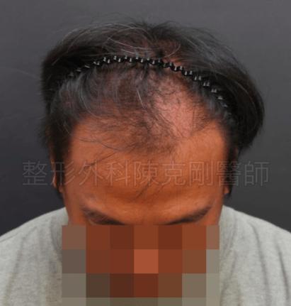二次植髮低頭術前.png