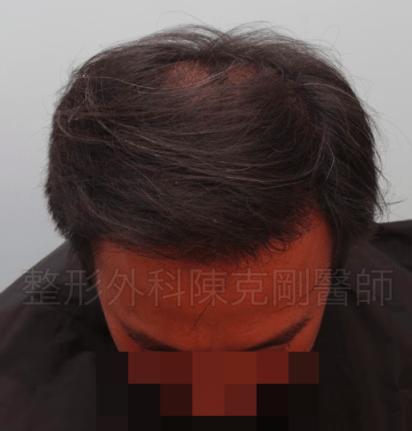 二次植髮術後六個月低頭.png