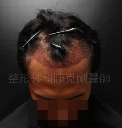 植髮油頭低頭術後.png
