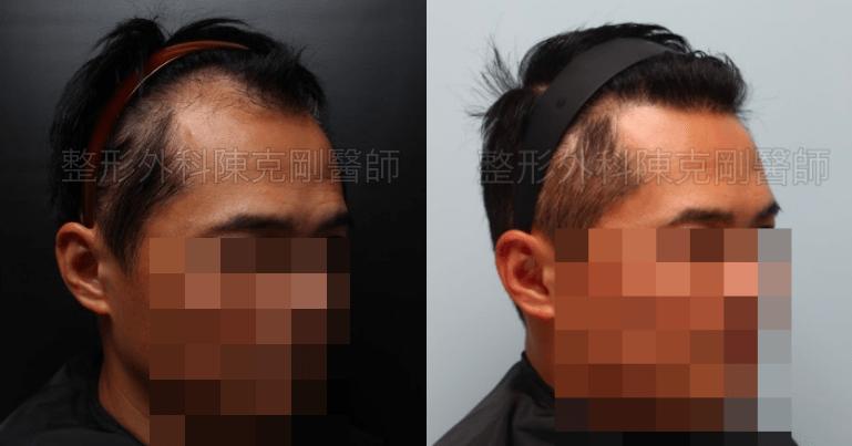植髮油頭右側45度比較