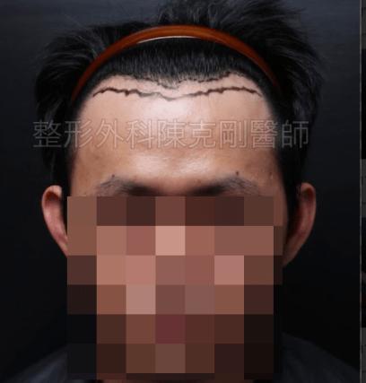 植髮髮線推前正面畫線
