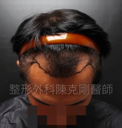 油頭植髮低頭畫線.png