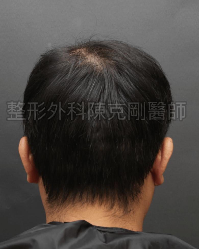 植髮1057株後腦術後.png