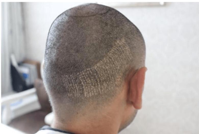 植髮失敗取髮假圖.png