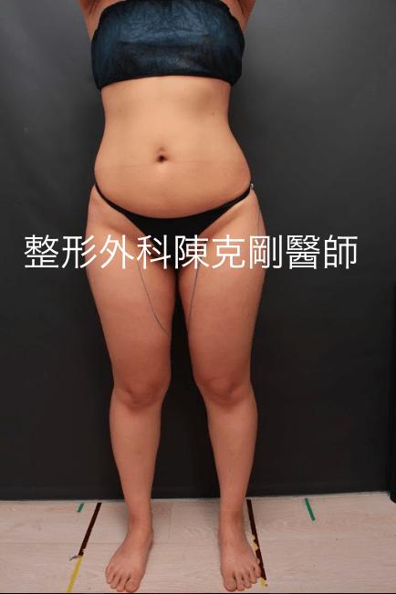 大腿內外側大腿縫 抽脂劃線正面.png