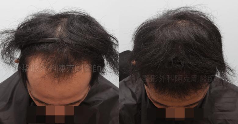 前額植髮 術後六個月 低頭比較.png