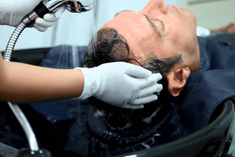 植髮後洗頭.png