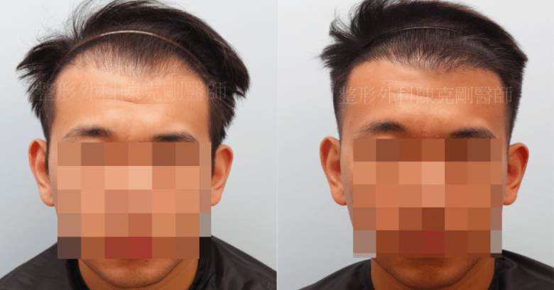 植髮失敗重修 結果 上梳比較