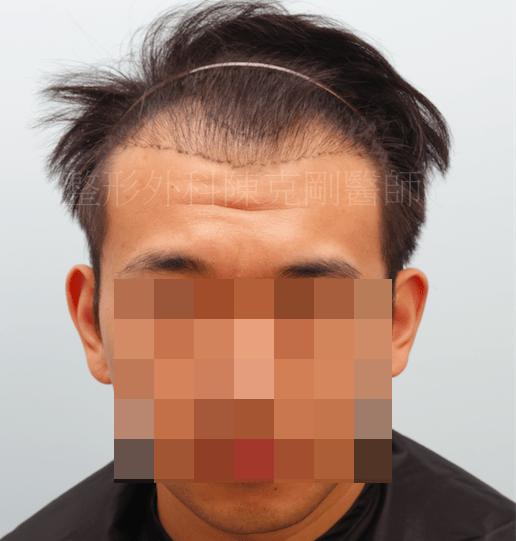 植髮效果 劃線