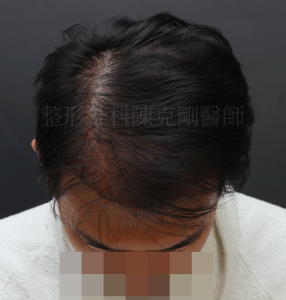 植髮失敗 重修 低頭術後立即