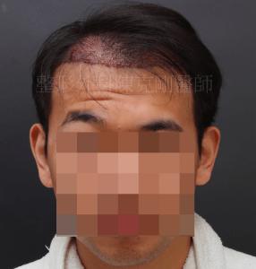植髮失敗 重修 正面術後立即
