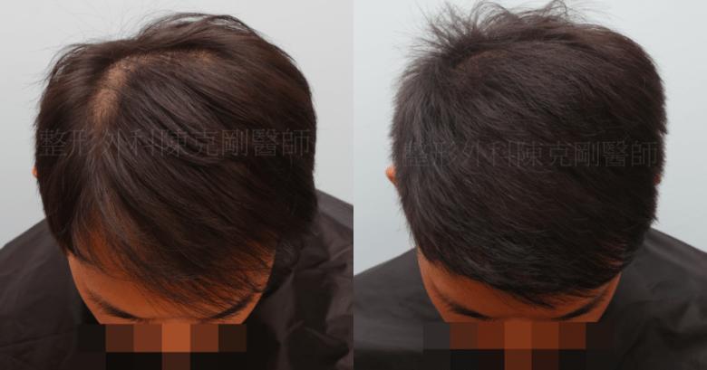 植髮效果 低頭比較