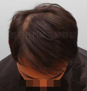 植髮失敗 低頭