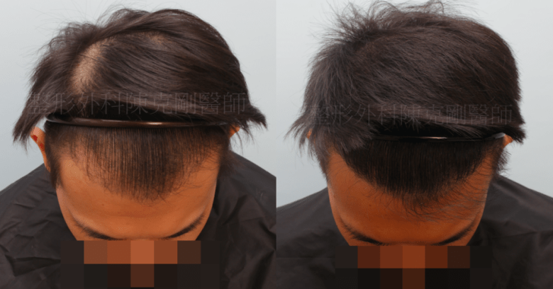 植髮失敗 重修 結果 低頭髮線比較