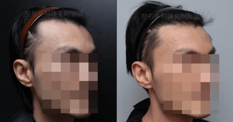 植髮際線右45度比較