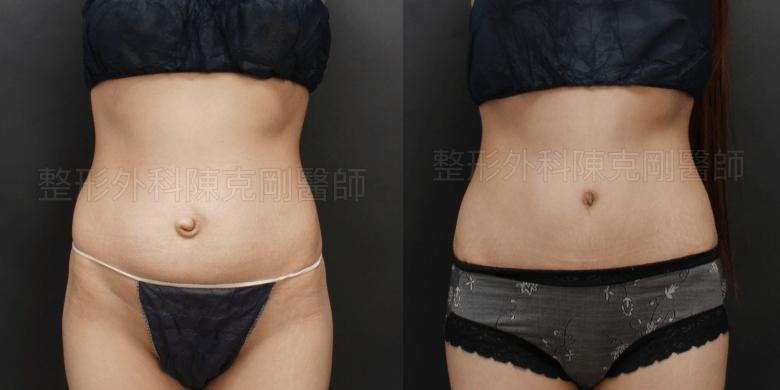 腹部拉皮肚臍整形比較