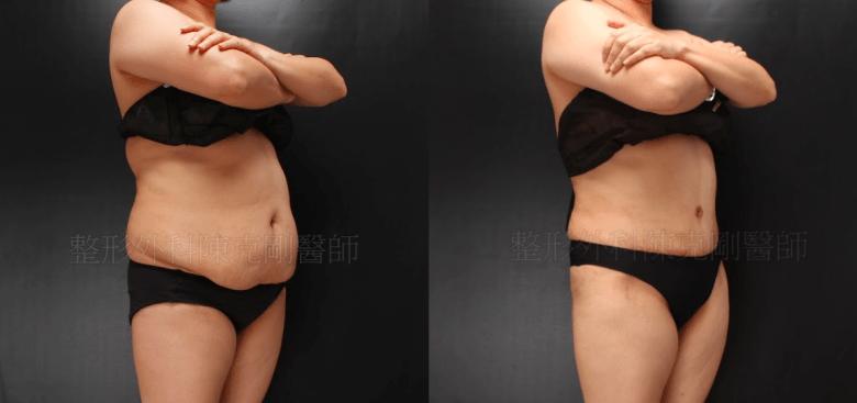 腹部拉皮45度比較