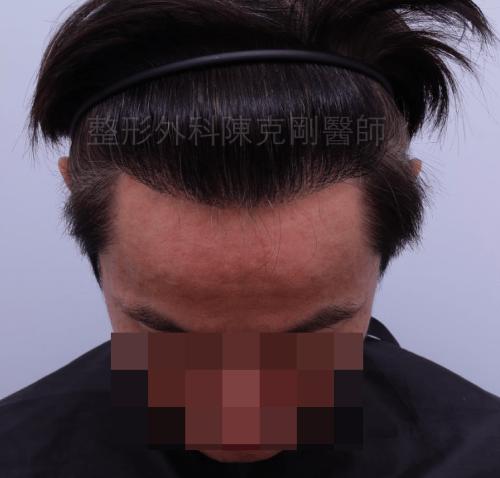 M型禿植髮正面一年