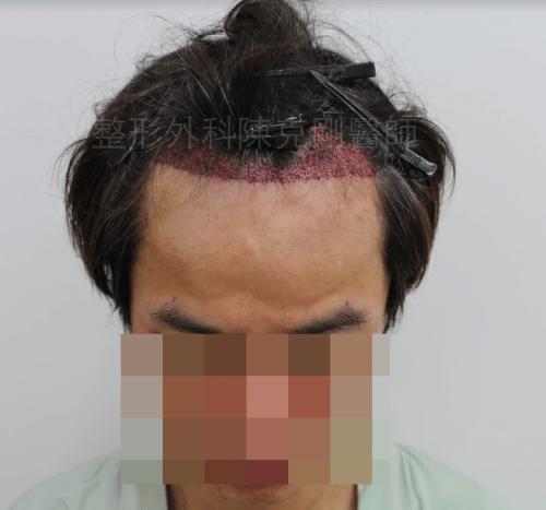 M型禿植髮正面術後立即