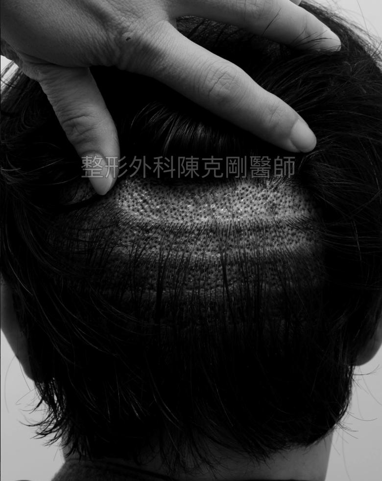 前額髮旋植髮後面術後立即