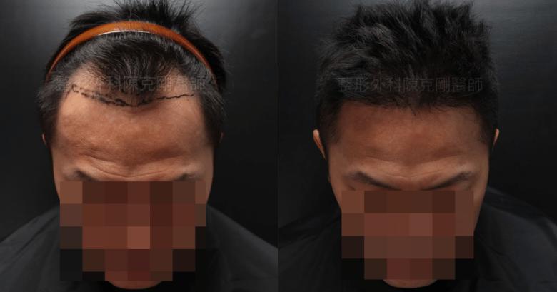 M型禿植髮正面低頭對比.png