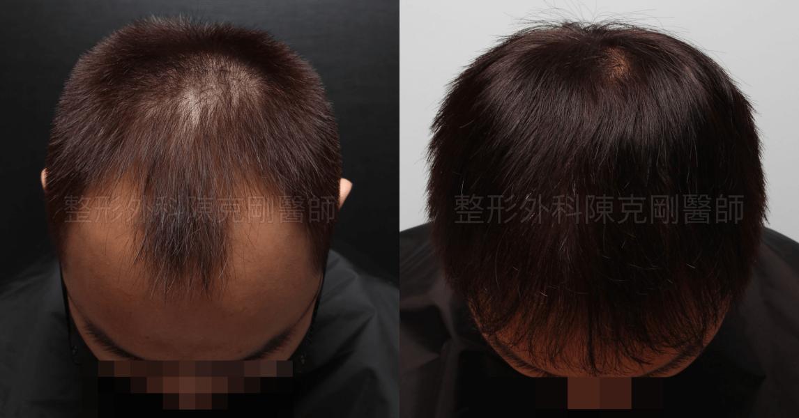 前額M型植髮低頭比較