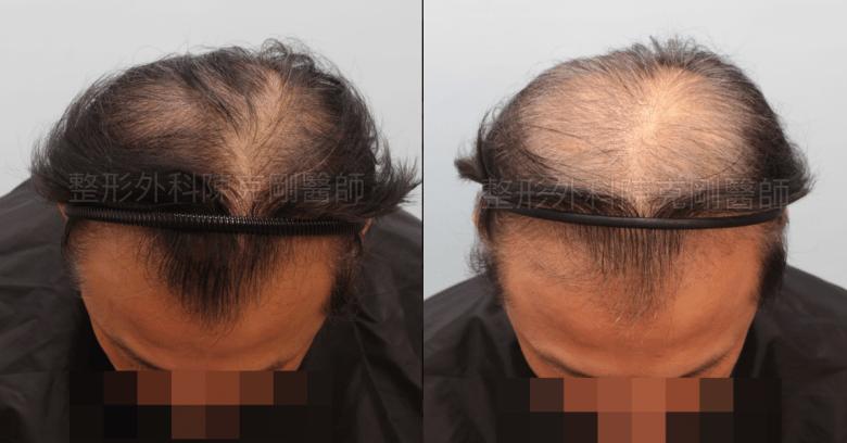 植髮落髮期