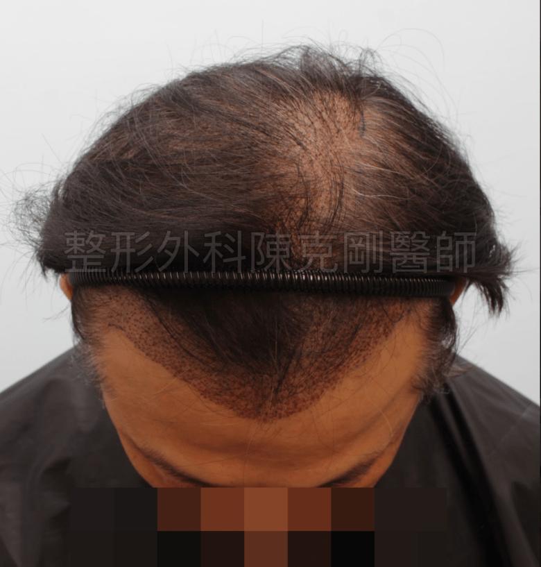 植髮術後立即 落髮期