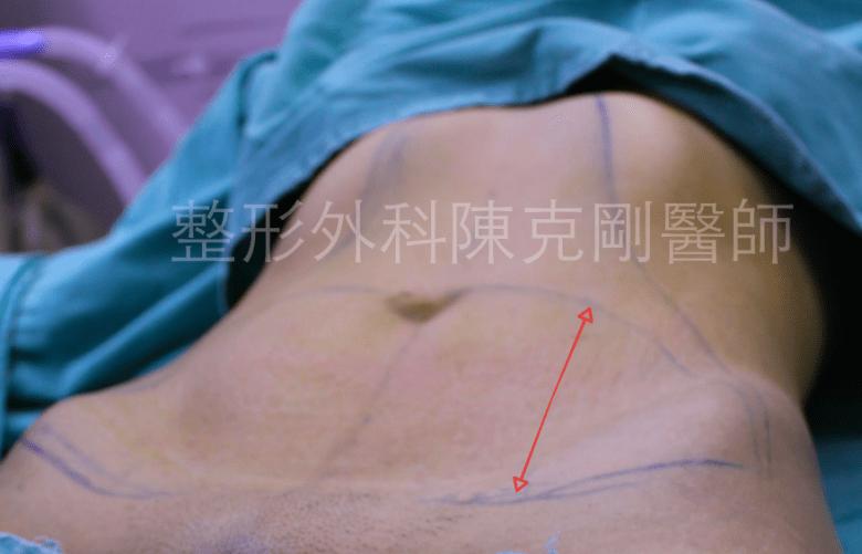 腹部拉皮 切除範圍
