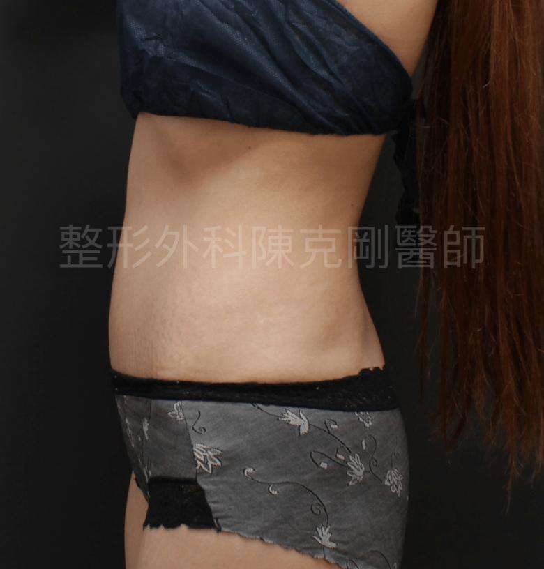 臍疝氣 腹部拉皮 側面 術後