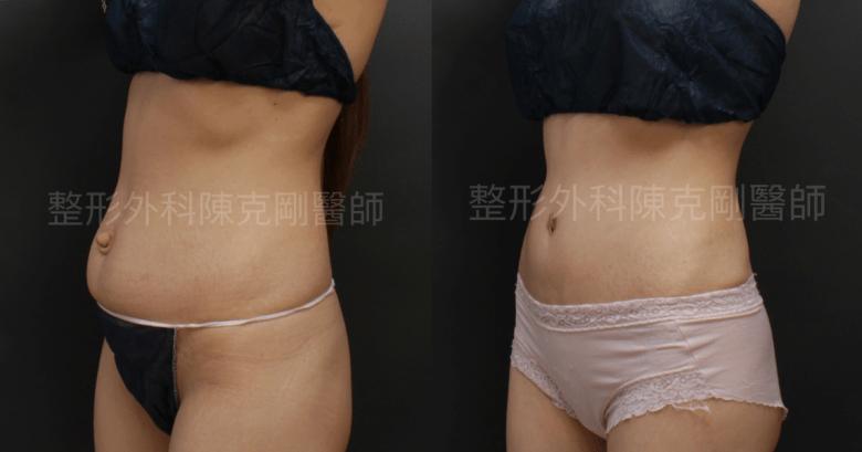 臍疝氣 腹部整形 右45度角