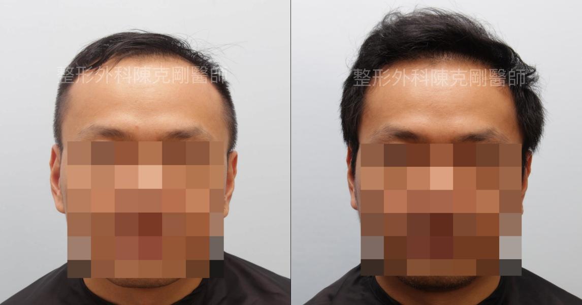 植髮合併生髮水正面比較