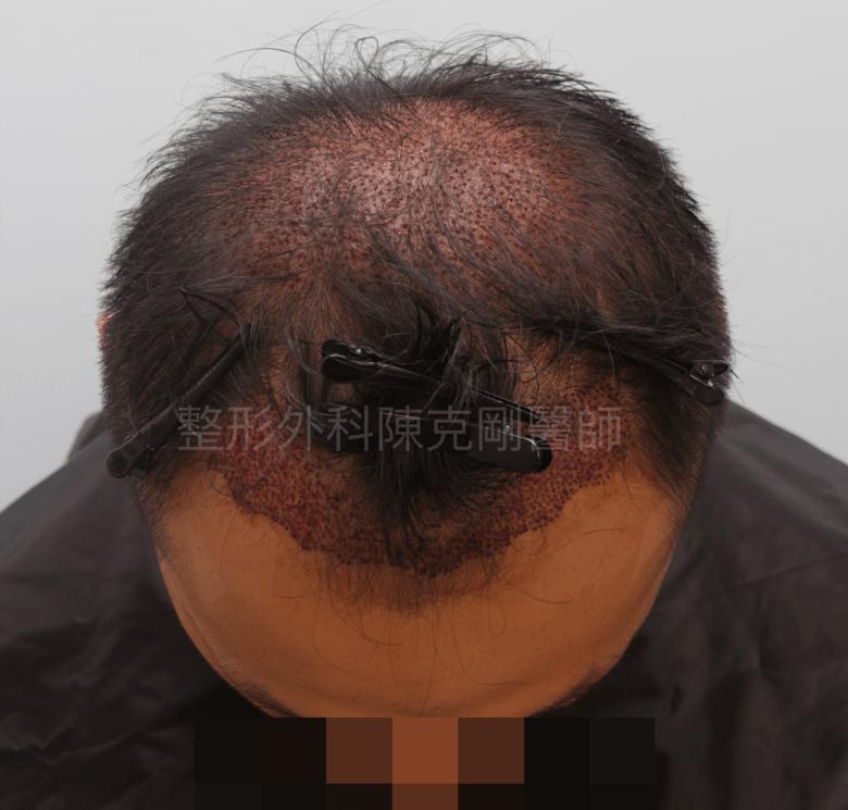 植髮合併生髮水立即術後